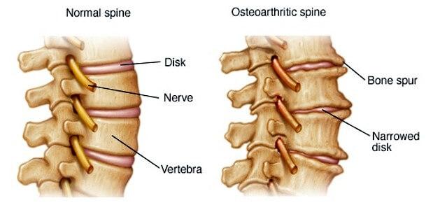 артроза на гръбначния стълб